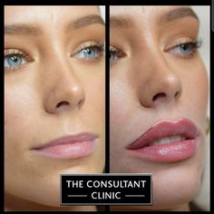 Erwähnungen J'aime, 220 Kommentare – The Consultant Clinic ( … Face Fillers, Botox Fillers, Dermal Fillers, Lip Job, Relleno Facial, Botox Lips, Colourpop Eyeshadow, Nose Surgery, Lip Contouring