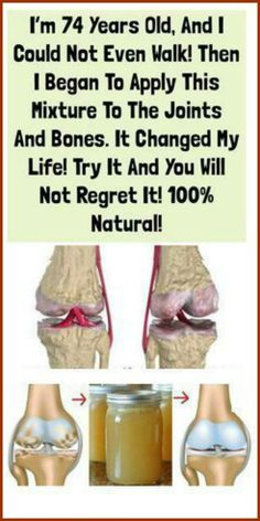 This medicine helps in the treatment of arthritis, osteoarthritis, back pain and anything that is associated with joints, bones, and muscles.