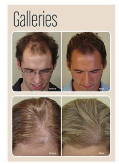 must read articles #Regenepure www.regenepure.com #hairloss