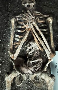 Skeleton of a 35 year old woman and her 8 month old child from Æbelholt Abbey, Denmark. The mother had between 17 to 24 oxalic acid kidney stones in the area of the fetus head. This is believed to have caused the strange position of the child and thus the death of the mother – who most likely was a patient at the monastery's hospital.