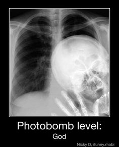 X-ray humor. Even though I X-ray airplanes this is funny lol Radiology Humor, Medical Humor, Nurse Humor, Funny Medical, Dental Humor, Haha Funny, Funny Memes, Hilarious, Funny Stuff