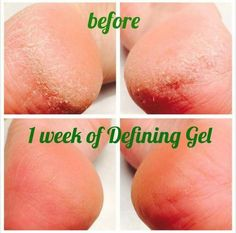 Defining Gel Before and After You can find out more about It Works! at my website, feel free to check it out http://67lgore.myitworks.com/