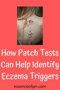 Get A Patch Test For Your Eczema ASAP! Severe Eczema, Mess Up, Cool Words, Improve Yourself, Patches