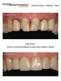 Caso Clinico | Flickr : corone in ceramica integrale sui due incisivi centrali e laterali - Clinical Case | Flickr: all-ceramic crowns on both central and lateral incisors