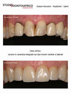 Caso Clinico   Flickr : corone in ceramica integrale sui due incisivi centrali e laterali - Clinical Case   Flickr: all-ceramic crowns on both central and lateral incisors