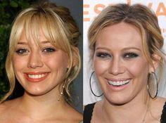 Hilary Duff Plastic Surgery u2013 What Has She Done?