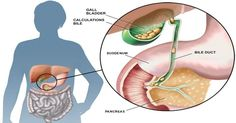 What is the Gallbladder? The gallbladder is a tiny, pear shaped organ that sits just beneath your liver. The liver produces bile. The gallbladder ...