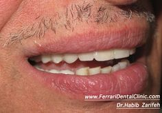 After full mouth dental implants rehabilitation. Ferrari dental clinic provides state of the art Hollywood smile, dental implants, veneers, lumineers, invisalign, pediatric dentistry in Lebanon. http://www.habibzarifeh.com