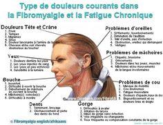 douleurs_fibro-tete-4mars2015.jpg (800×616)