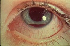 Hyphema: blood in the front chamber of the eye. It may appear as a reddish tinge, or it may appear as a small pool of blood at the bottom of the iris or in the cornea. Concurrent elevation of IOP may require topical/oral ocular hypotensive medications to lower the IOP and sometimes antifibrinolytic agents, cycloplegia and topical steroids too. Aspirin should not be used.