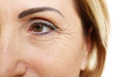 How to remove the fine lines of the eyes, three skin care measures to help you restore beautiful skin Under Eye Wrinkles, Prevent Wrinkles, Face Wrinkles, Crema Facial Natural, Anti Ride, Les Rides, Chemical Peel, Aging Process, Caviar
