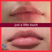 The secret to a younger, pouty lips may lie in looking to cosmetic lip enhancement to restore a full Face Fillers, Dermal Fillers, Lip Injections, Lip Plumper, Botox Lips, Lip Types, Aesthetic Dermatology, Permanent Lipstick, Facial Aesthetics