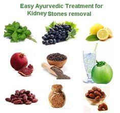 37 best kidney stones images on pinterest home remedies, kidneykidney healthtonsil