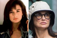 Demi Moore  It seemed actress Demi Moore was going to stay forever young: she kept her body looking amazing after giving birth to three kids, and she was married to Ashton Kutcher, 16 years younger than her and a very hot guy. Not too shabby.