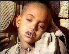 criança fome nordeste - Pesquisa Google