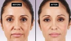 Home Remedy To Erase All Aging Signs From Your Face – MayaWebWorld