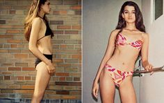 Best Home Treatment for Anorexia Nervosa-1