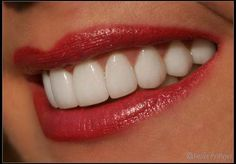20 porcelain veneers for a beautiful smile!