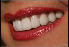 20 porcelain veneers for a beautiful smile!