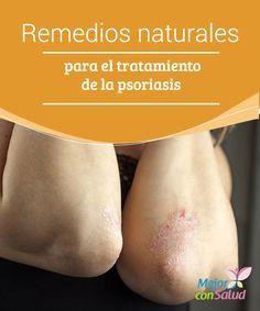Remedios naturales para el tratamiento de la psoriasis La psoriasis es una enfermedad crónica de la piel que se desarrolla cuando las células se acumulan en la superficie de la dermis y forman placas o parches rojos y gruesos