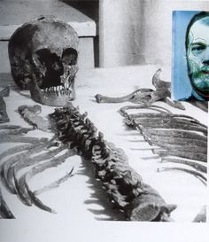The skull and skeleton of Czar Nicholas II (found in the 1990s)