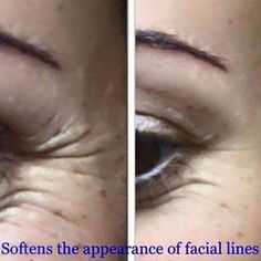 Tru Face Instant Anti-wrinkle Cream - The Beauty Guide Nutriol Shampoo, Eyebrow Serum, Face Lines, Centella, Juice Beauty, Crows Feet, Beauty Guide, Volume Mascara, Acne Scars