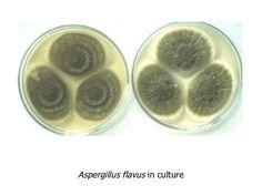 Resultado de imagen para aspergillus