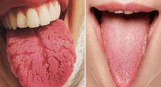10 Signs Your Body Has Too Much Estrogen And How To Start Flushing it Out Immediately - Tongue Health, Oral Health, Dental Health, Health Tips, Health And Wellness, Health Fitness, Yoga Fitness, Health Benefits, Health Products