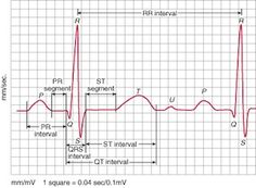 The electrocardiogram can pick up all sorts of electrolyte abnormalities. The most common abnormalities revolve around high and low levels of potassium and calcium. Magnesium derangements typically have nonspecific findings. How do you keep things straight? To make things more complicated, multiple electrolyte derangements can