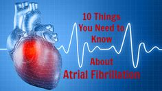 Do you know these 10 essential afib facts?