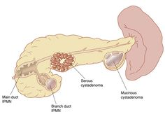 PANCREATIC CYSTS AND PSEUDOCYSTS? - Google Search