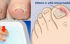 Te ha pasado que en ocasiones tienes alrededor de la piel de tus uñas notas que está un poco roja y con síntomas de una infección. En este caso, debemos mirarla bien, pues puede que se trate de una uña encarnada, la cual es muy doloroso. Normalmente, sucede en el dedo gordo, pero podría producirse …