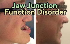 Jaw joint dysfunction is a combination of painful symptoms affecting the jaw joints. The joints are composed of the temporal bone of the skull (mandible-bula) and jaw muscles.