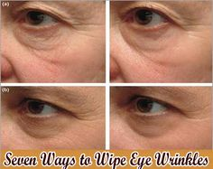 Killer Tips For Anti Aging Skin Care | Health Villas