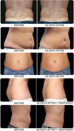 Lose those love handles: Ultra Smooth Skin offers CoolSculpting!