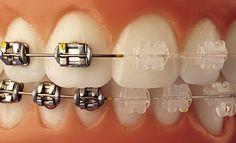 Ortodontia e Ortopedia Facial - Dra. Daniela Thys Ortodontista: Tipos de brackets