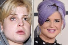 Kelly Osbourne receives a lot of backlash for being a fashion critic while simultaneously ignoring all of her own advice, but that isn't all that weird considering her father literally bit the head off of a bat.