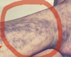 Natural Remedies For Varicose Veins Everybody Has This Miracle Cure for Varicose Veins At Home, But Many People Don't Know About It Health Advice, Health And Wellness, Health And Beauty, Health Fitness, Health Care, Health Remedies, Home Remedies, Natural Remedies, Allergy Remedies