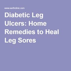 Natural Remedies For Diabetic Leg Ulcers