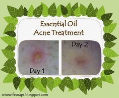 DIY Essential Oil Acne Treatment for Existing Blemishes. Reduces size and redness in just one day!