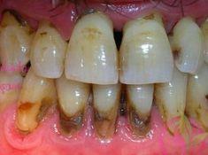Bunu gizlediği için diş hekiminize kızaksınız bu yöntemi görünce, tüm Tartar'ı 2 Gün içinde yok edeceksiniz!
