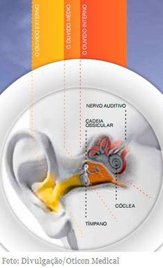Nova técnica para cirurgia de implante coclear auxilia na preservação da audição natural  Método consiste no uso de medicamentos durante a cirurgia, como a dexametasona e o ácido hialurônico, inserção de feixe de eletrodos e uso de um implante coclear específico e não traumático