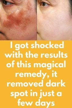 I got shocked with the results of this magical remedy, it removed dark spot in just a few days Today I will share a magical remedy which will remove your dark spots in just 1 day. This remedy will fade your dark circles and dark spots and give you clean, clear and bright skin. Repeat this procedure daily for 3 days. Ingredients you will need – 1 tablespoon of aloe Vera gel (I prefer fresh …
