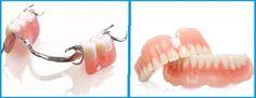 Giải pháp trồng răng giả khi xương hàm yếu
