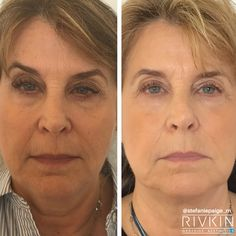 #voluma #sculptra #facelift #nonsurgicalfacelift # restylane #juvederm #wrinklefree #cheekbones #beforeaftwr #westsideaesthetics #drrivkin #stefaniepaige #injections #beauty Non Surgical Facelift, Beauty, Cosmetology