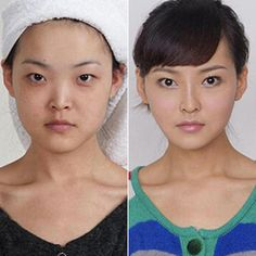 Real Plastic Surgery Patients Who Are Unrecognizable at Airport Security
