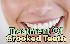 There are numerous orthodontic treatment choices today to have your teeth rectified in helpful, quick and compelling ways.  https://www.thecrookedteeth.com/treatment-of-crooked-teeth/