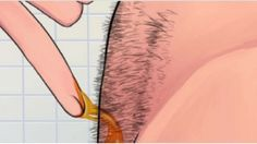 How to naturally remove body hair permanently. (No waxing or shaving) - My Medicine Book Beauty Secrets, Diy Beauty, Beauty Hacks, Unwanted Hair, Tips Belleza, Health And Beauty Tips, Facial Hair, Hair Removal, Face And Body
