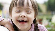 Liked on YouTube: La inestabilidad atlantoaxoidea en niños con el síndrome de Down