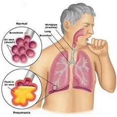 If you are dealing with coughs and mucus, it is time to say goodbye to these problems. We have an incredible remedy that is made only from natural ingredients.    It provides amazing results and has no
